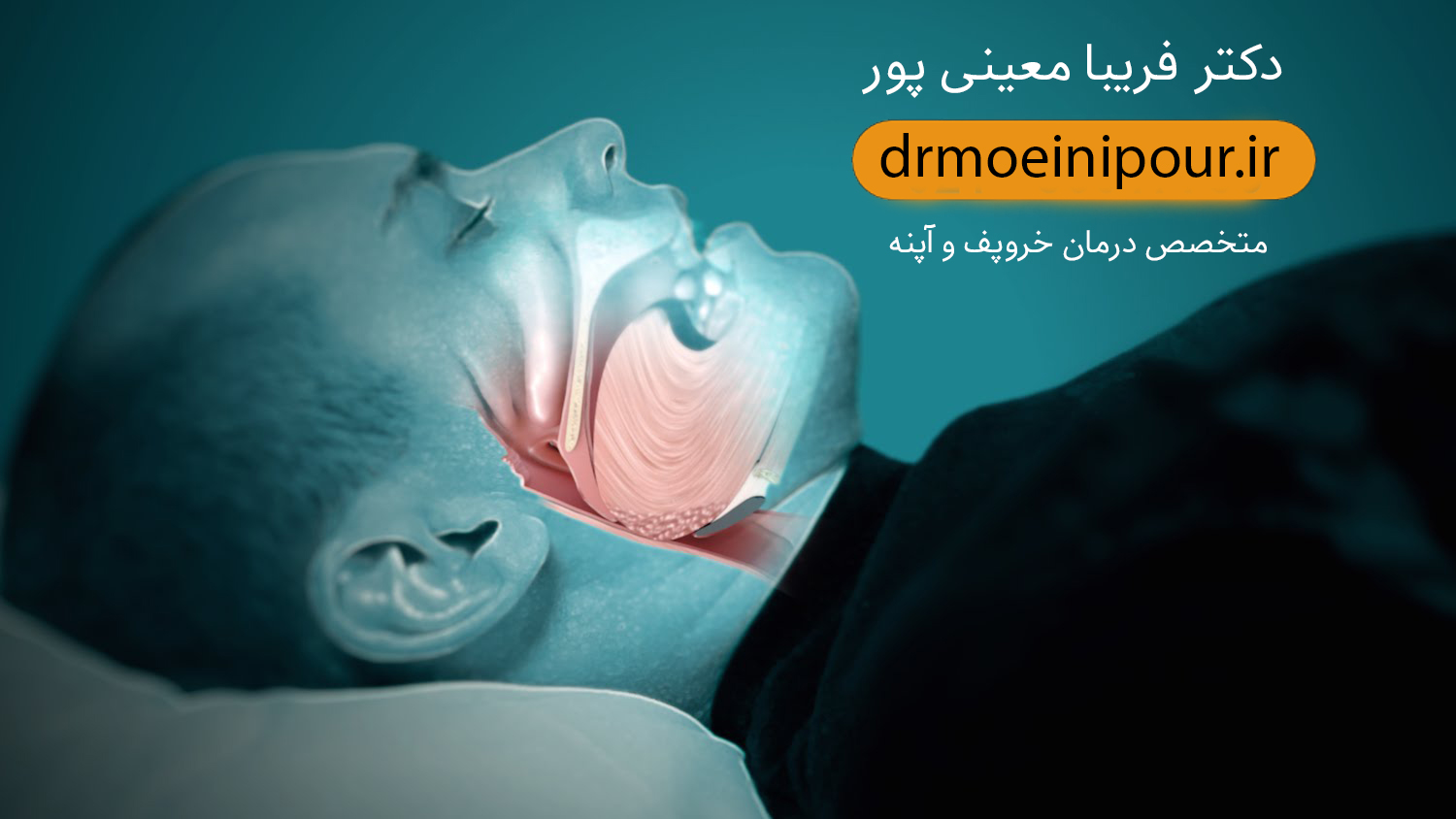 درمان جدید خروپف new Treating snoring