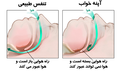درمان جدید خروپف , sleep clinic in tehran , new Treating snoring and apnea